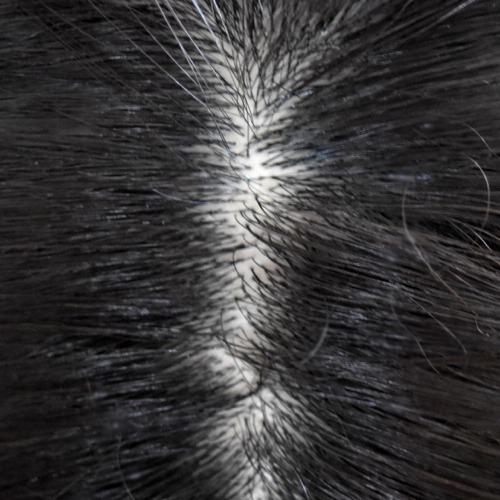 夏の頭皮ムシムシをスッキリ爽快!「自宅でシンプルヘッドスパ」してみませんか?